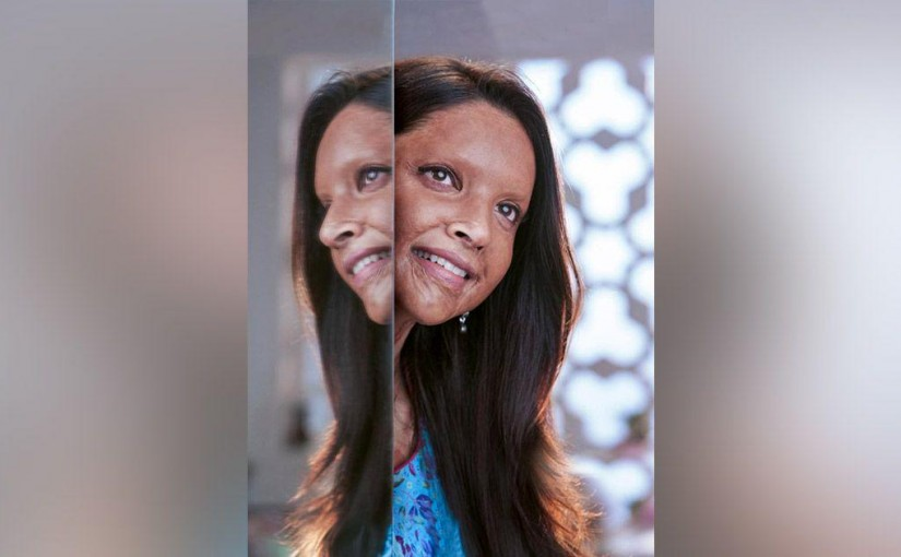 Dipika padukon in movie Chhapak, ourvoice, werIndia